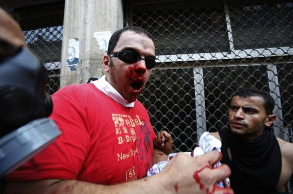 A protester stands injured outside Al-Fath Mosque in Ramses Square.